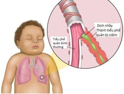 Hen phế quản ở trẻ em và cách phòng tránh